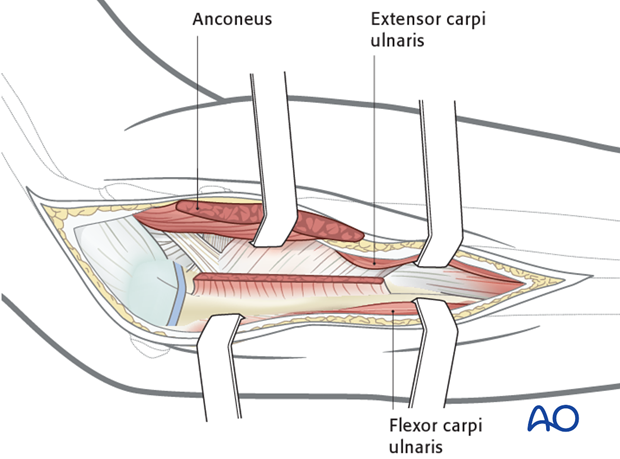 Exposure of posterior surface of the ulna