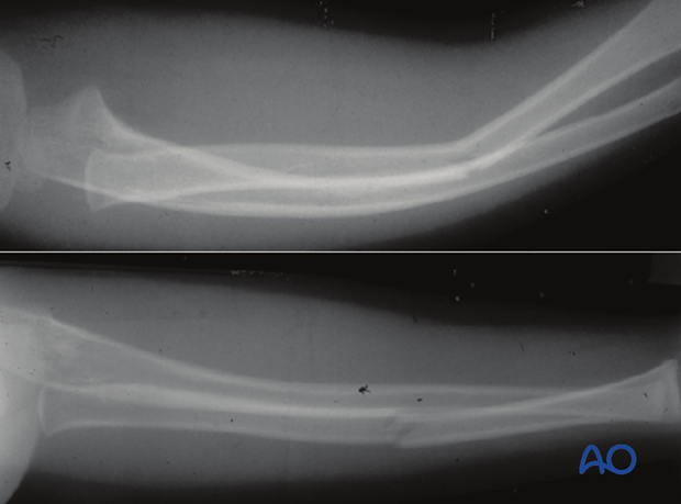 Greenstick fracture of the radius and bowing of the ulna