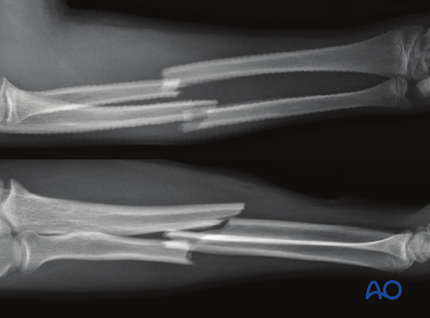 Transverse fracture of the radius and oblique fracture of the ulna, with both bones in apposition