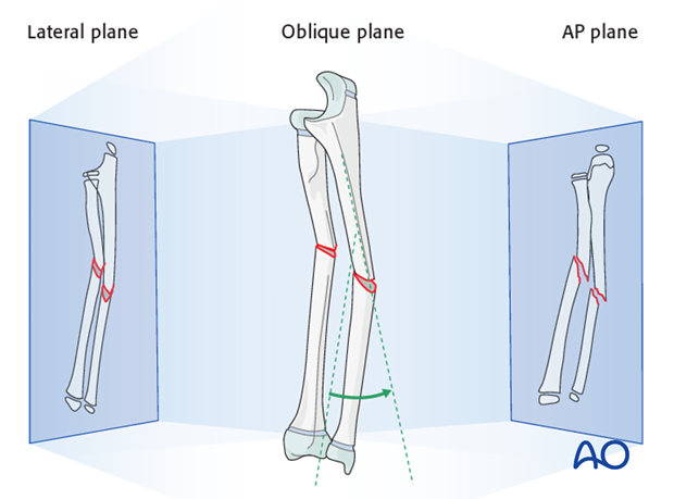Most fractures have a single oblique plane.