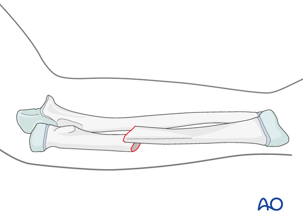 Bayonet apposition of a transverse fracture