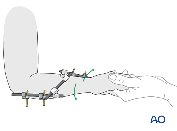 Assessment of forearm rotation