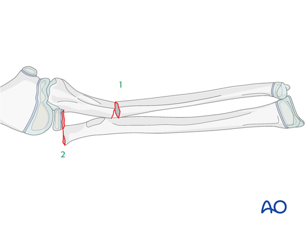 Reduction and fixation of the ulnar shaft fracture