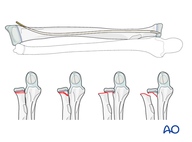 Reduction and fixation of radial head/neck