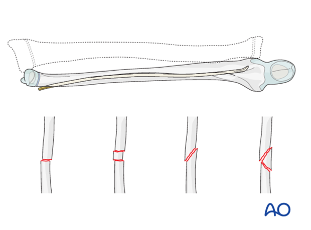 Reduction and fixation of the ulna