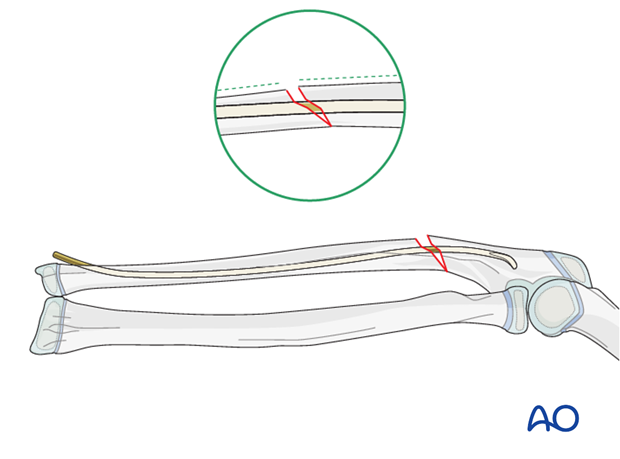 In Monteggia lesions, reduction and stable fixation of the ulna are required to ensure stable reduction of the radial head.