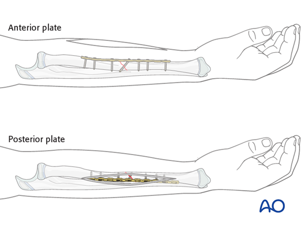 Plate position