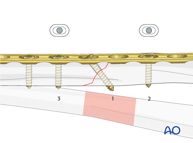 Insertion of plate screws
