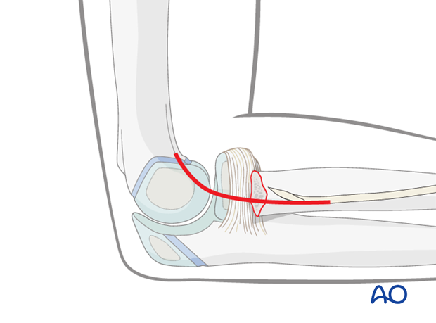 Lateral approach to the proximal radius