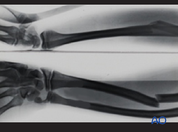 Complete transverse fracture of the radius and bowing of the ulna