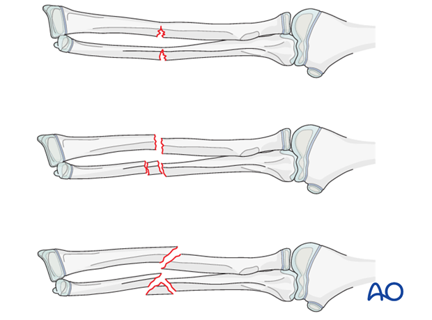 fracture instability and malalignment