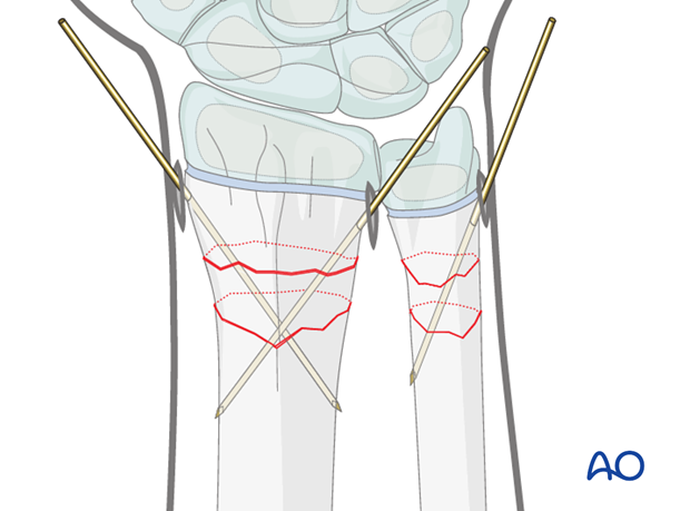 open reduction k wire fixation