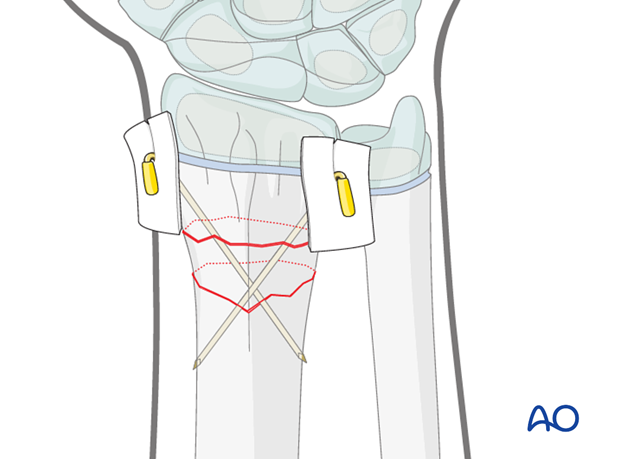closed reduction k wire fixation