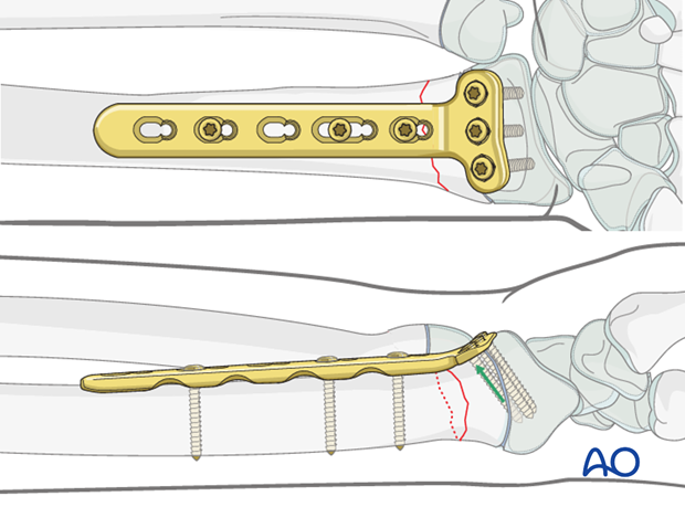 open reduction plate fixation