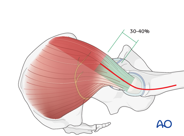 transgluteal approach