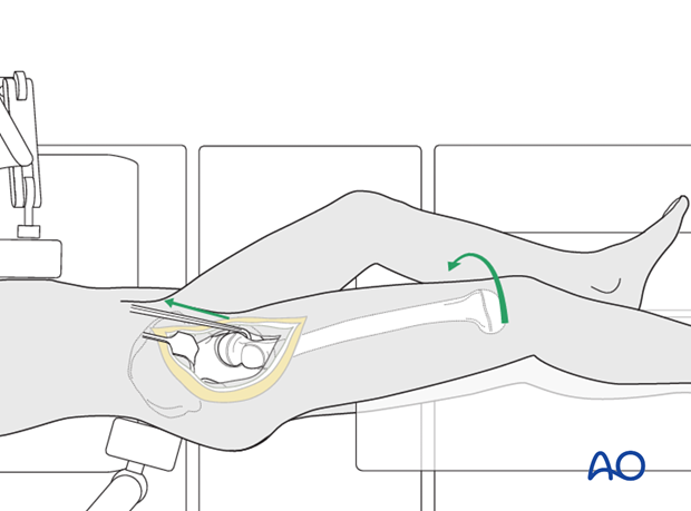 surgical hip dislocation
