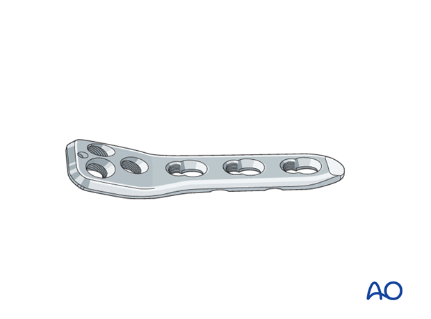 open reduction pediatric hip locking plate