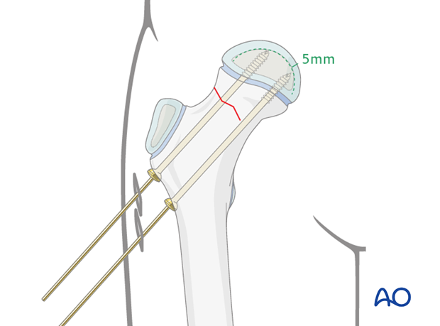 in situ fixation with k wires or screws