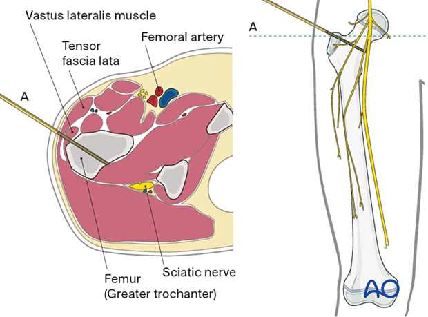 Safe pin placement through vastus lateralis and greater trochanter towards the lesser trochanter