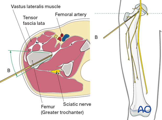 Safe pin placement through vastus lateralis and greater trochanter towards the femoral neck