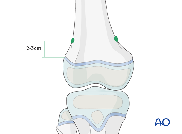 Position of nail entry points
