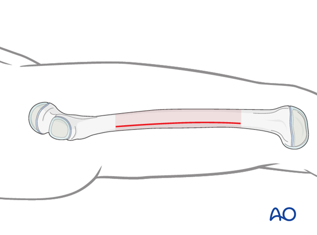 Line for short incisions along the lateral femoral shaft