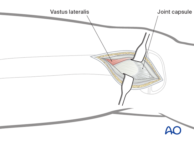 Mobilization and retraction of the vastus lateralis