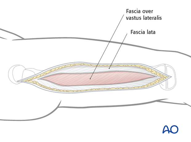 Opening the fascia lata
