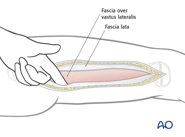 Separation of vastus lateralis from fascia lata