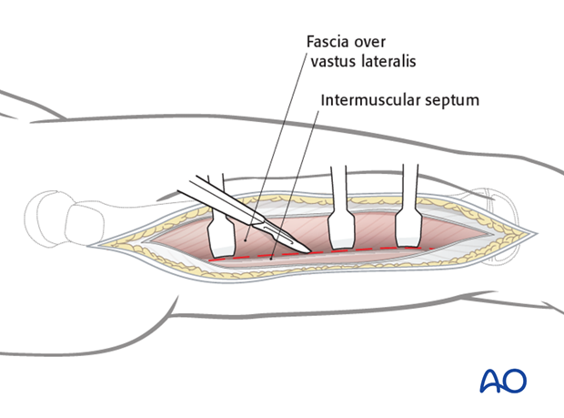 Incision of the fascia vastus lateralis