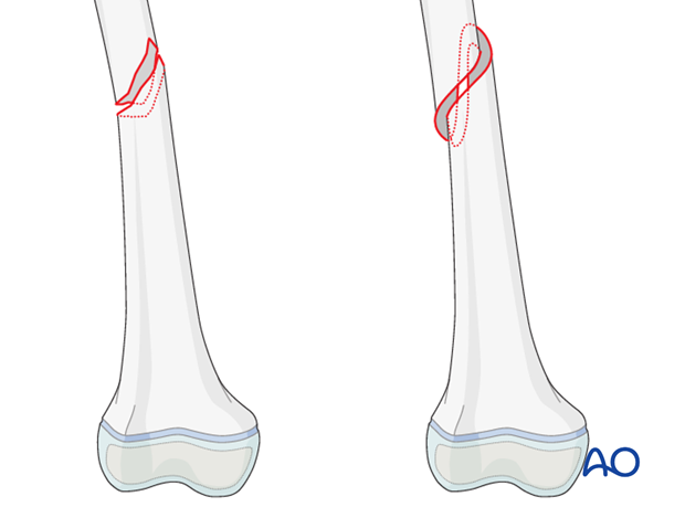 Simple, complete oblique and spiral femoral shaft fracture