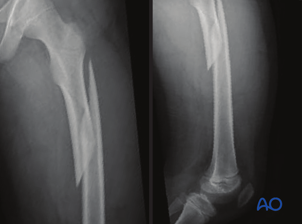 X-ray of a long oblique proximal-third femoral shaft fracture