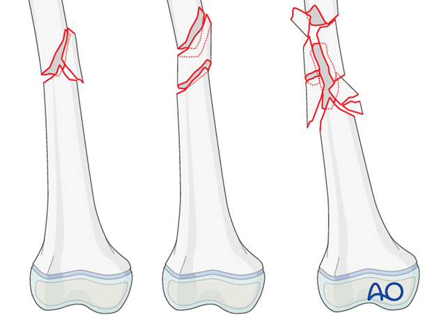 Wedge, oblique segmental, or comminuted femoral shaft fracture