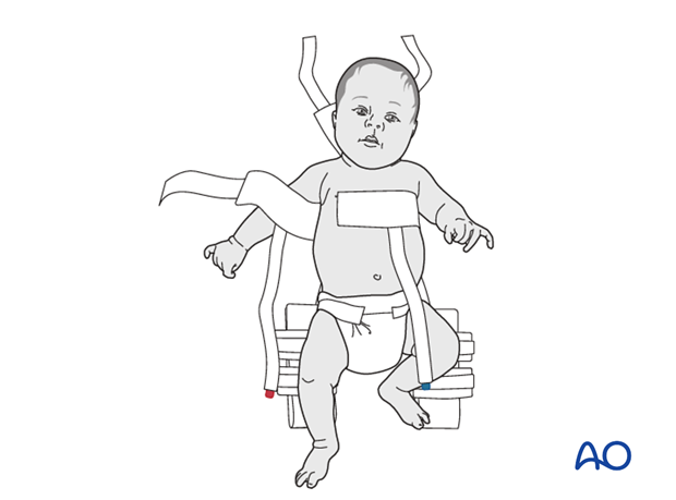 Placement of infant on top of harness