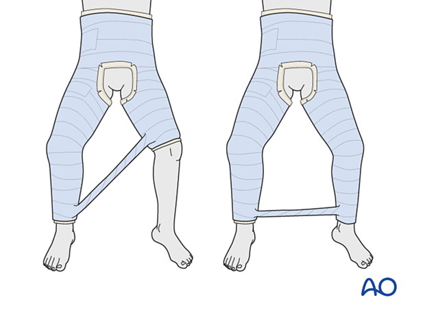 Addition of a bar between the legs