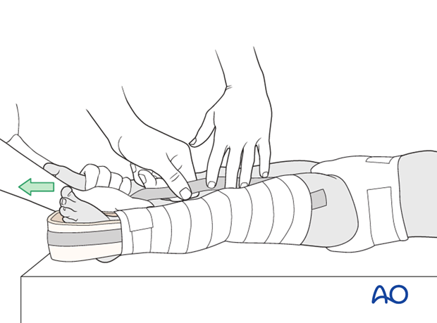 Application of stirrup on injured leg with assistant