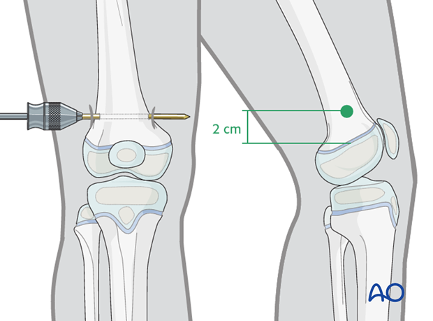 Insertion of pin in the distal femur
