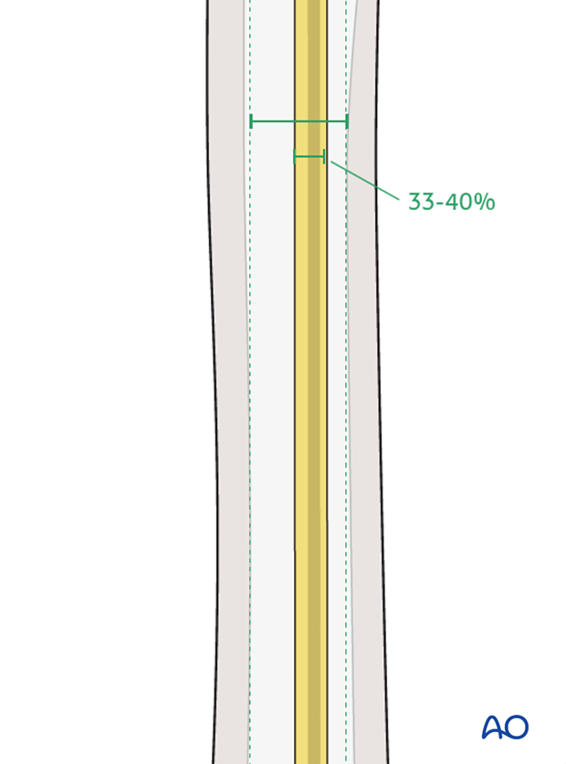 Nail diameter should be 33–40% of narrowest part of medullary canal.