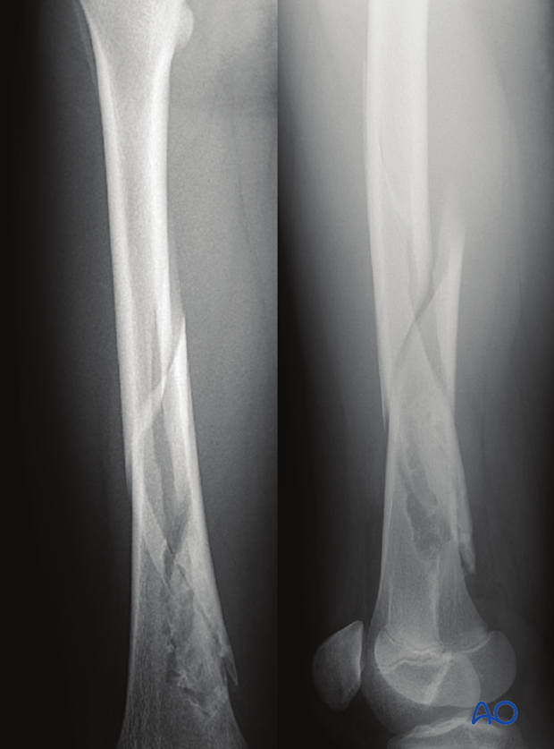 AP and lateral view x-ray of fracture