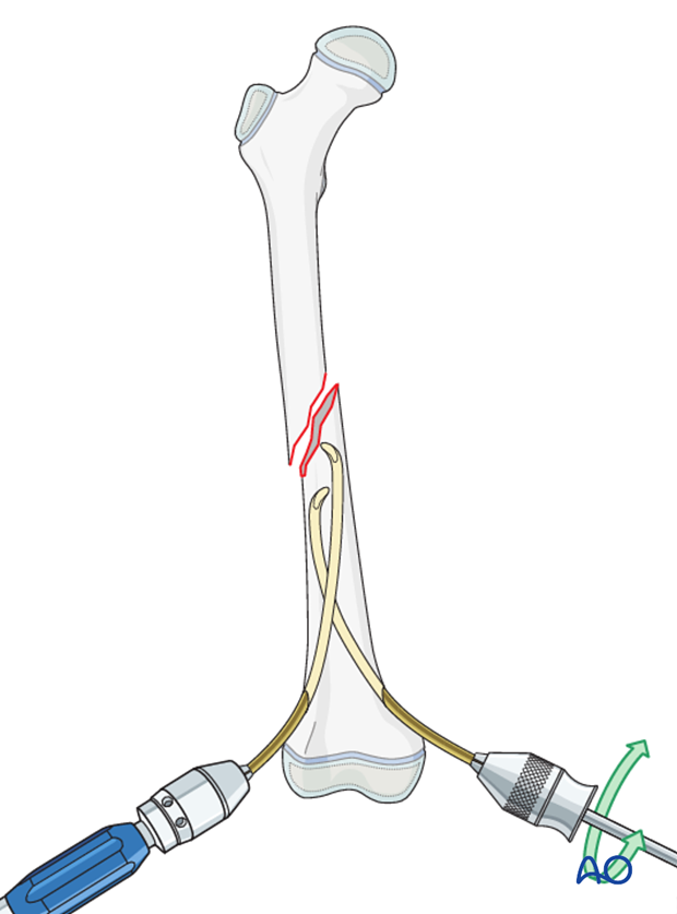 Insertion of second nail