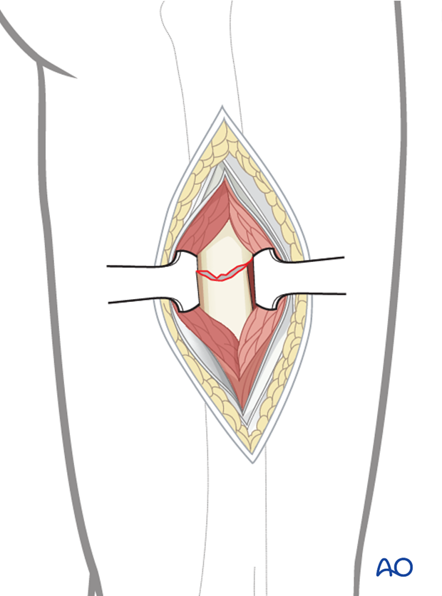 Open reduction through a limited lateral approach