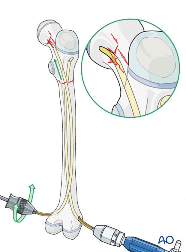 Pitfall: penetration of femoral neck
