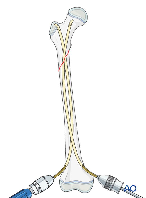 Advancing the nails into femoral neck and greater trochanter with proximal fractures
