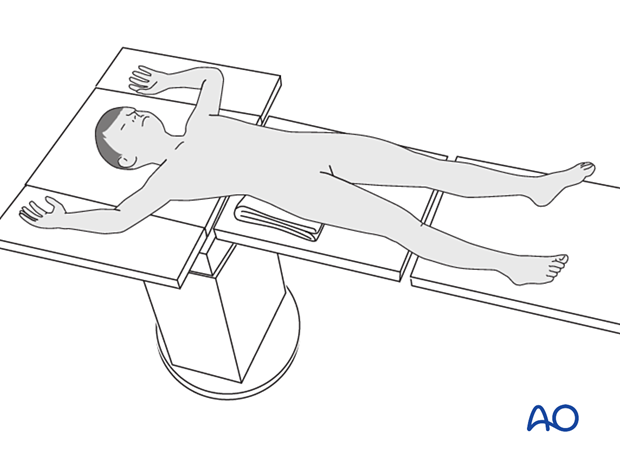 Supine patient position on a radiolucent fractures table without traction