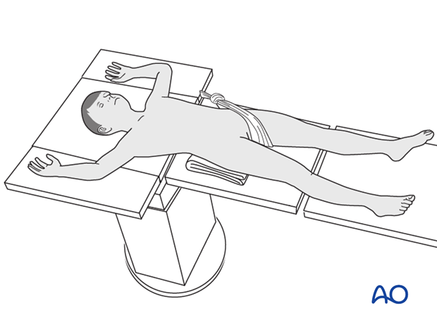 Patient position on a radiolucent fracture table