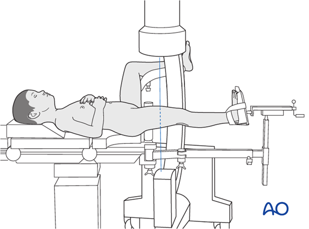 Supine patient position on a traction table