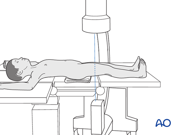 Supine patient position on a radiolucent fracture table with C-arm positioning