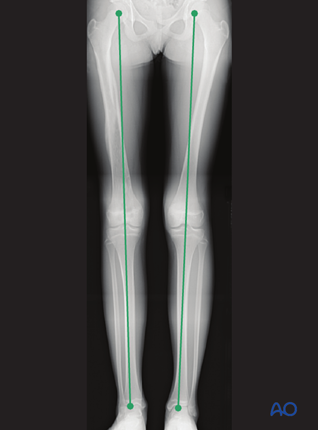 Leg length measured in a long-leg x-ray from femoral head to ankle joint