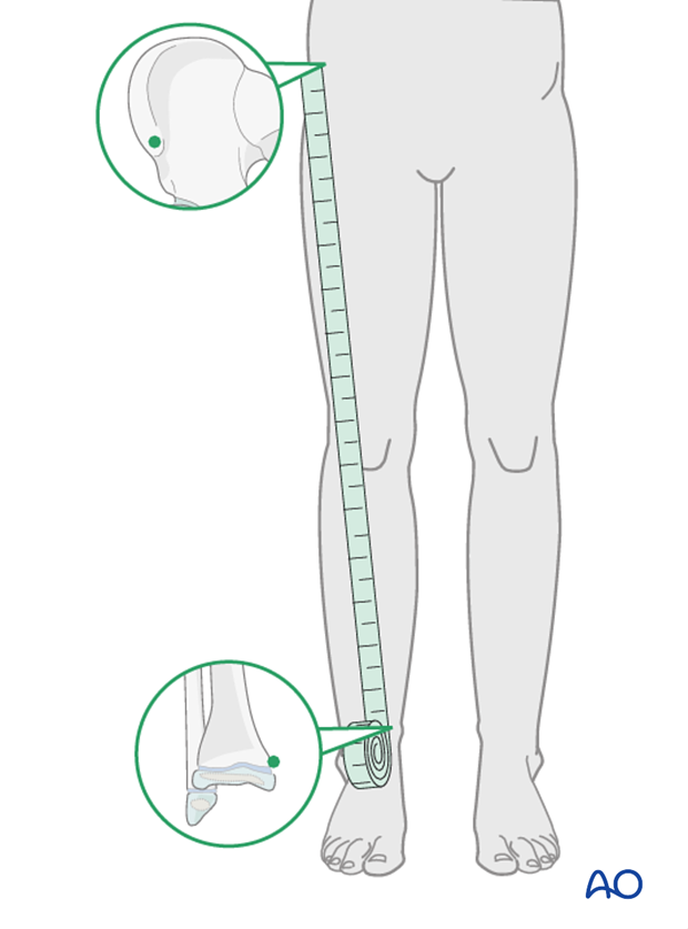 Clinical assessment of leg length with tape measure form ASIS to medial malleolus