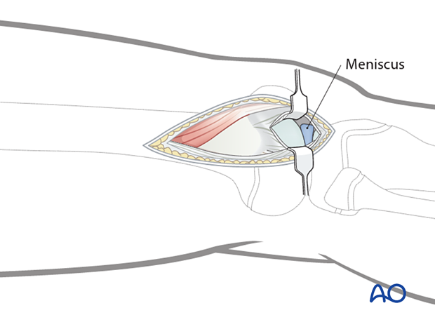 Joint capsule arthrotomy for articular surface visualization